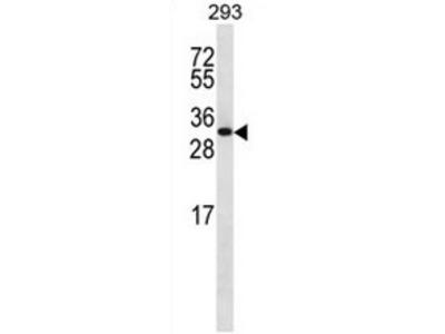 CHMP6 (N-term) rabbit polyclonal antibody, Aff - Purified