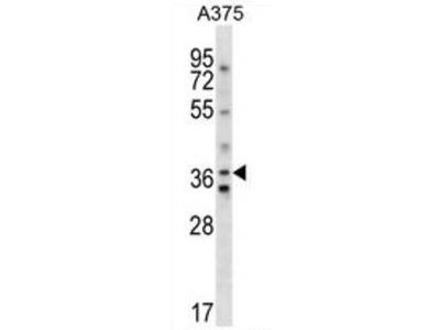 anti Vasopressin V1a receptor (C-term)