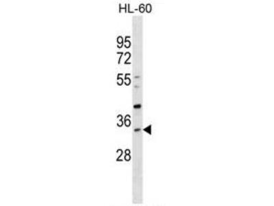 anti SULT1B1 (C-term)