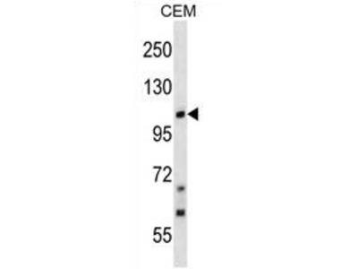 anti TRPC7 / TRP7 (C-term)