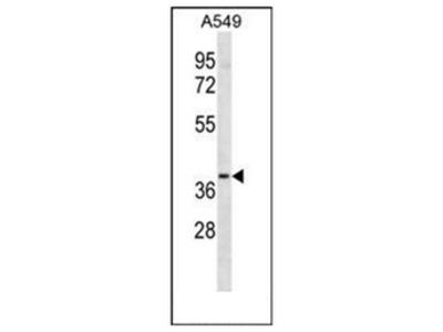 anti LTB4R2 / BLT2R (C-term)