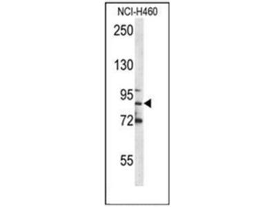 anti Myeloperoxidase (C-term)