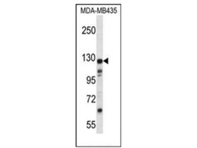 anti KIAA1324 / EIG121 (C-term)
