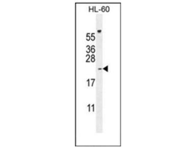 anti PLA2G2C (C-term)