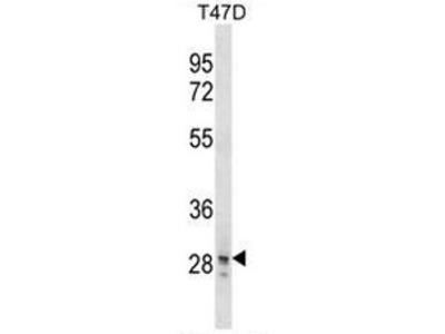 anti SNAI3 (N-term)