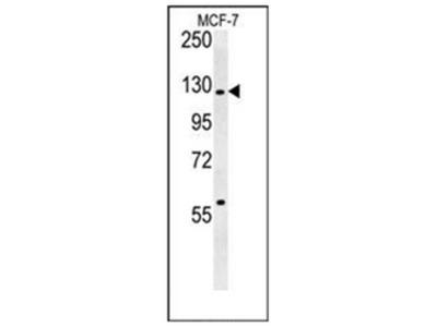 anti RABGAP1 (N-term)