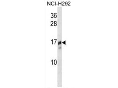 anti TRAPPC2 (N-term)