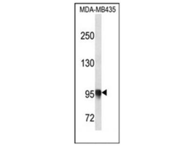 anti PLOD3 (N-term)