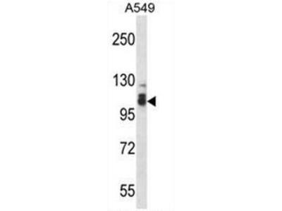 SMEK2 (PPP4R3B) (C-term) rabbit polyclonal antibody, Aff - Purified