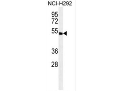 anti ABHD8 (C-term)