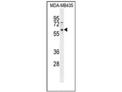 PPP3CC (N-term) rabbit polyclonal antibody, Aff - Purified