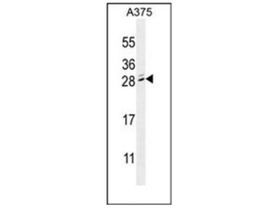 anti MBD3L2 (C-term)