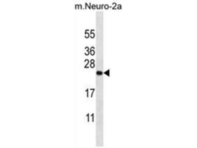 anti ZCRB1 (C-term)