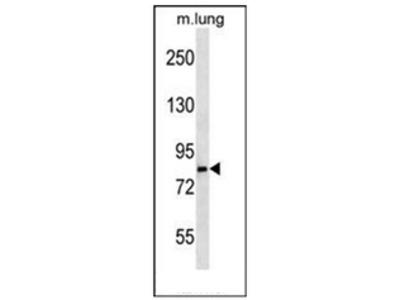 anti LRSAM1 (N-term)