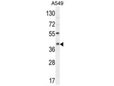 C5R1 (C5AR1) (Center) rabbit polyclonal antibody, Aff - Purified