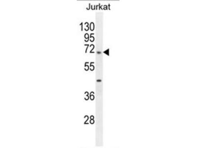 TBC1D3H (N-term) rabbit polyclonal antibody, Aff - Purified