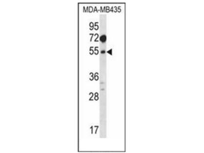 anti MAT1A (N-term)