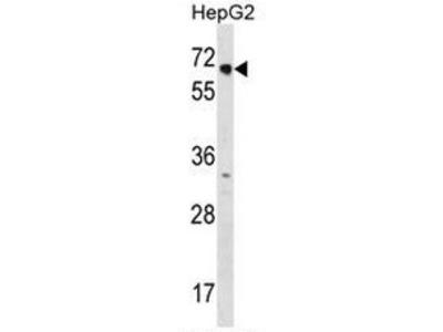 anti NR2C1 (C-term)