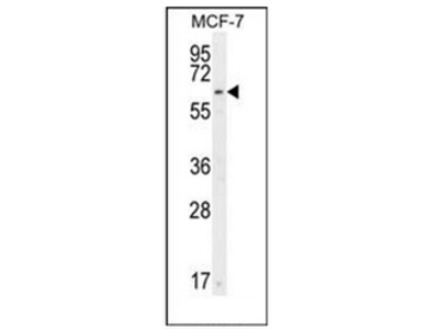 anti CTDSPL2 (N-term)