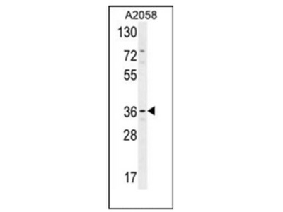 anti Protein lifeguard 1 (Center)