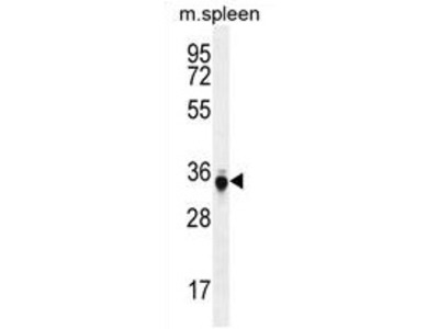 anti TP53INP1 (C-term)