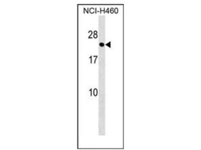 anti RAB41 (C-term)