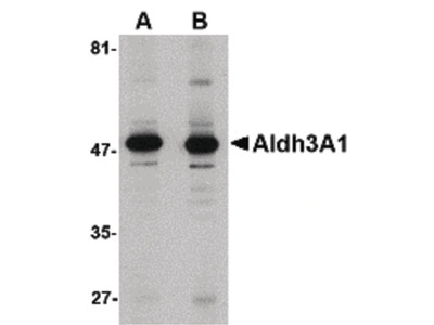 ALDH3A1 Polyclonal Antibody