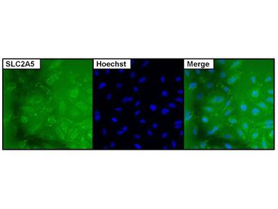 SLC2A5 Monoclonal Antibody (14C8)