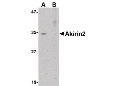 Akirin2 Polyclonal Antibody