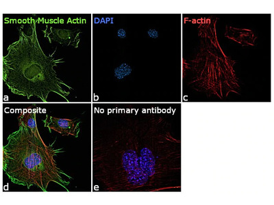 Alpha-Smooth Muscle Actin Monoclonal Antibody (1H8)
