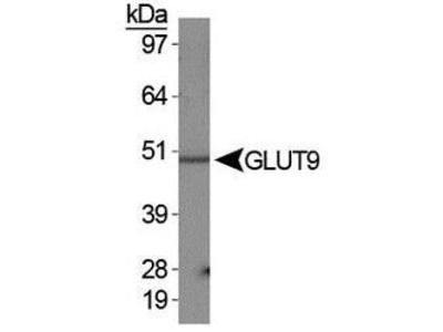 GLUT9 Polyclonal Antibody