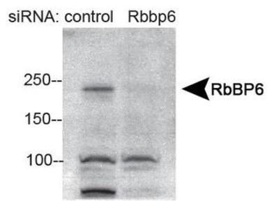RBBP6 Polyclonal Antibody
