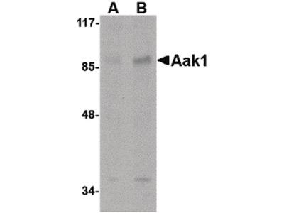 AAK1 Polyclonal Antibody
