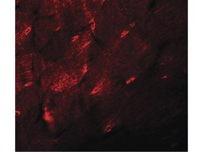 TMEM38A Polyclonal Antibody