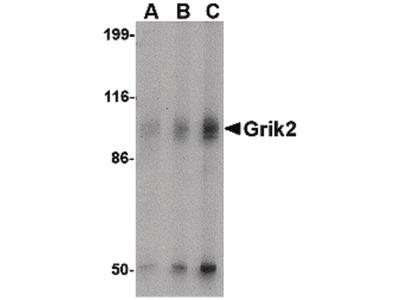 GluR6 Polyclonal Antibody