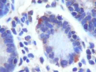 LGR5 Polyclonal Antibody
