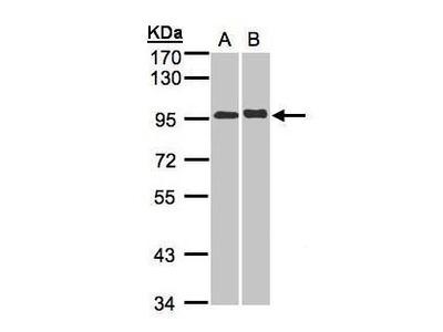 IL12RB2 Polyclonal Antibody