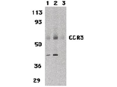 CCR3 Polyclonal Antibody
