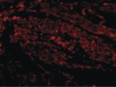TIM-1 Polyclonal Antibody