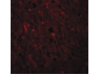 PLEKHM2 Polyclonal Antibody