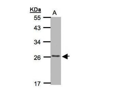 CMTM5 Polyclonal Antibody