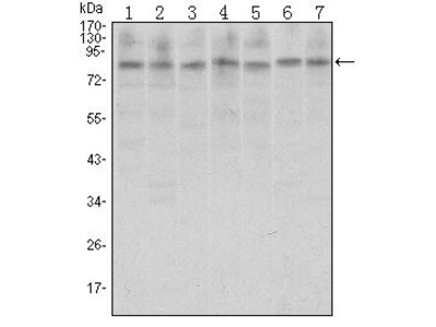 CTCF Monoclonal Antibody (1D11)