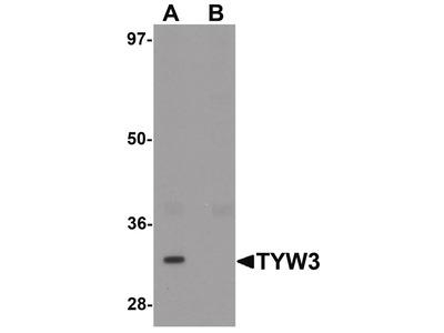 TYW3 Polyclonal Antibody
