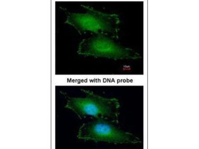 PEF1 Polyclonal Antibody