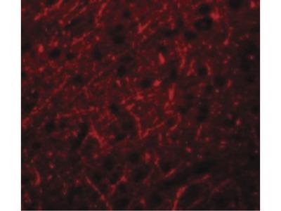 PRDM16 Polyclonal Antibody