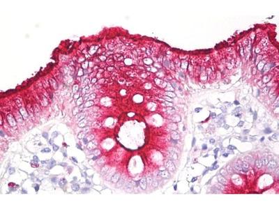 CEACAM Pan Monoclonal Antibody (CLB-gran/10)
