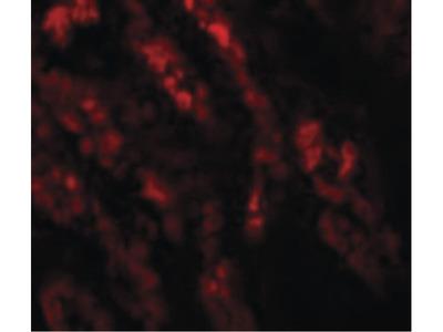 GLS2 Polyclonal Antibody