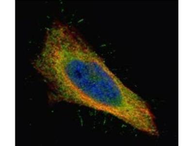 Filamin B Polyclonal Antibody