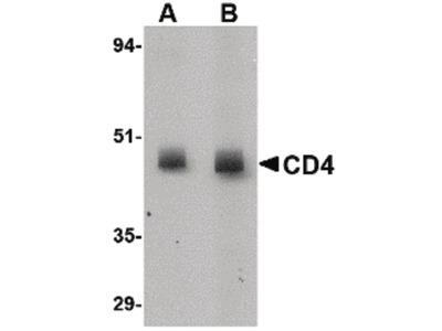 CD4 Monoclonal Antibody (8G1B12)