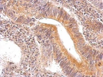 ENO3 Polyclonal Antibody
